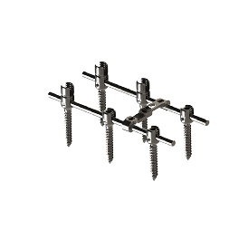 EDEN Spinal Pedicle Screw
