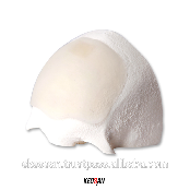 Forehead silicone implant